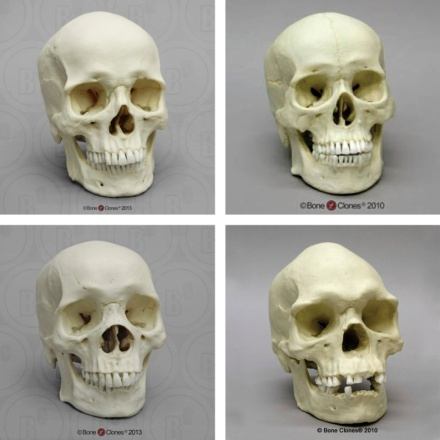 Skull shapes of various races