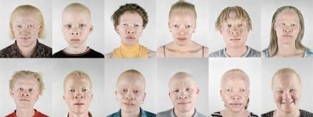 1-10 Black albinos v3